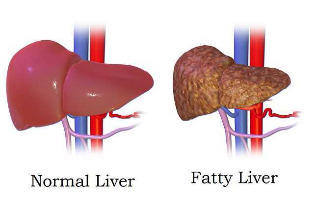 how-alcohol-damages-your-liver-04