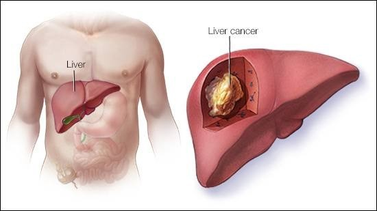 how-alcohol-damages-your-liver-07