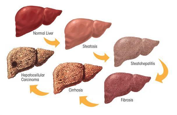 how-liver-cancer-develops-01