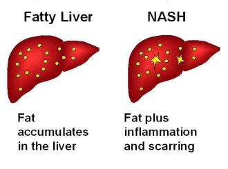 how-liver-cancer-develops-03