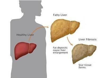 how-liver-cancer-develops-04