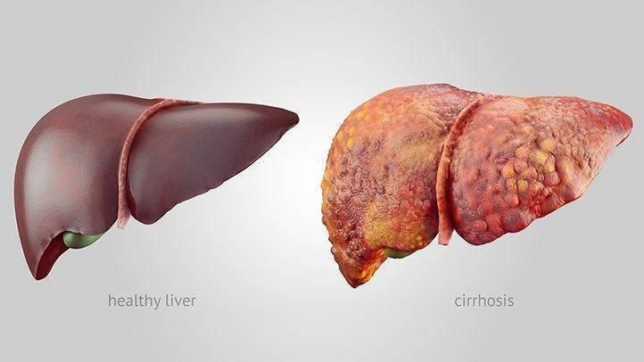 how-liver-cancer-develops-05