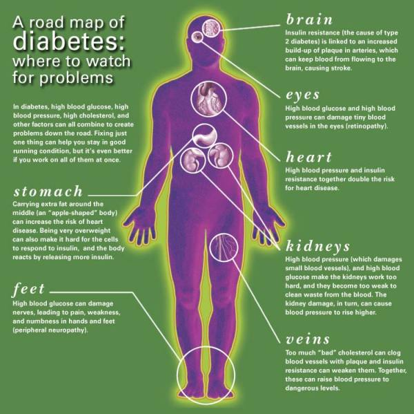 Diabetes complications Living with type 2 diabetes
