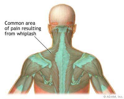 neck and upper back pain of whiplash