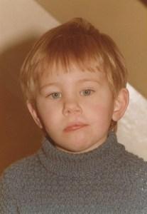 DMS - Hair Lip - Early years - post op