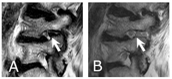 foraminotomy MRI