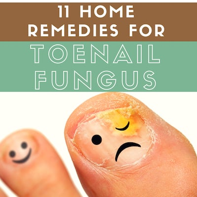 11 Home Remedies For Toenail Fungus That Actually Work