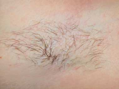 Laser Hair Removal Before removal-img01