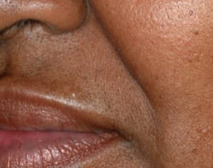 Laser Hair Removal After-img03