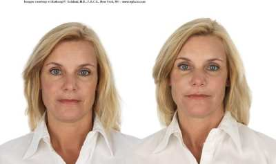 selphyl_before_after_results (2)