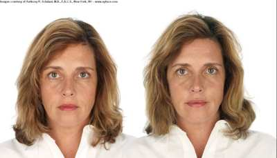 selphyl_before_after_results_7