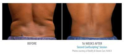CoolSculpting Before and After 19