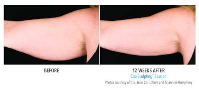 CoolSculpting Before and After 28