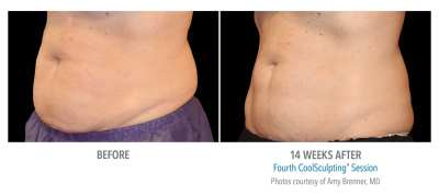 CoolSculpting Before and After 11