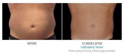 CoolSculpting Before and After 10