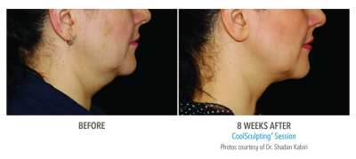CoolSculpting Before and After 3