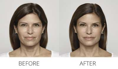 AQUAGOLD Before & After - Full Face