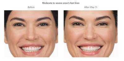 AQUAGOLD Before & After - Crows Feet