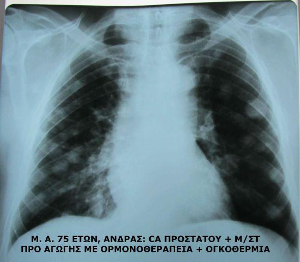 Καρκίνος προστάτη με πνευμονικές μεταστάσεις και υπερθερμία