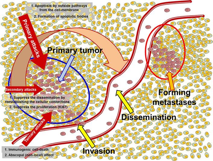 Ογκοθερμία Υπερθερμία – Κλινικές μελέτες: Πού βρισκόμαστε σήμερα;