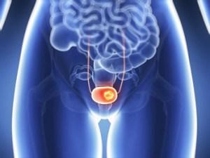 Καρκίνος ουροδόχου κύστης κααι Υπερθερμία