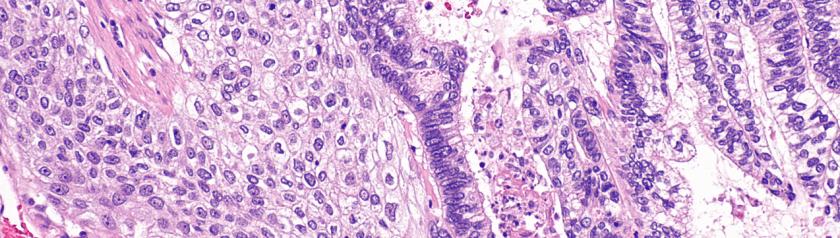 Αδενοπλακώδης καρκίνος πνεύμονα και υπερθερμία: Ιστολογική δομή