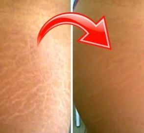 Mix These 3 Ingredients to Quickly Fade Your Stretch Marks