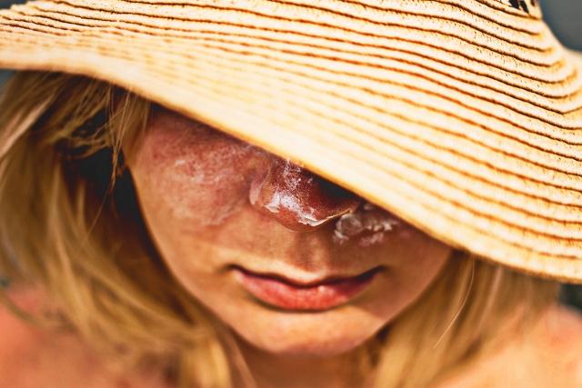 日焼け後のケア、パック、あなたの肌対策は大丈夫ですか?