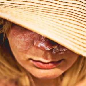 日焼け後のケアにニベアクリームは本当に効果があるの?