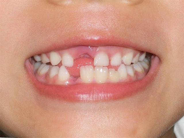 上の歯が抜ける