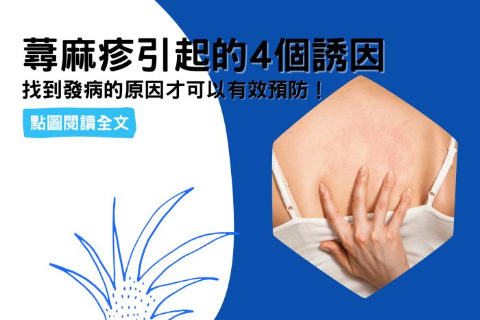 蕁麻疹引起的4個誘因,希望你一個都不中!-台灣養生網