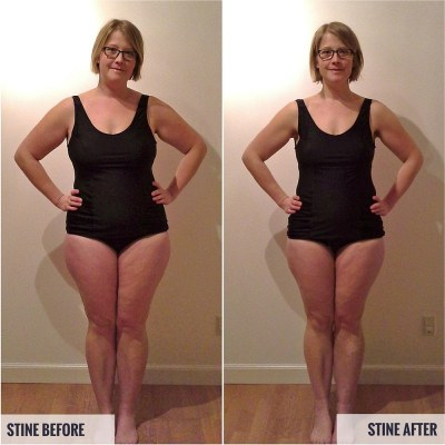 Stine Before and After Photos