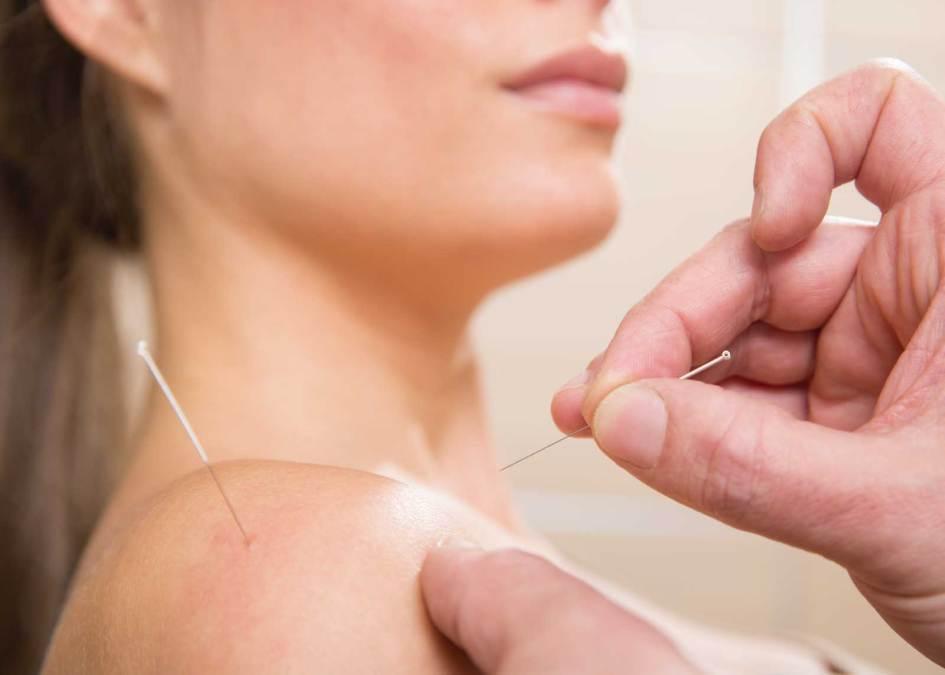 針灸 Acupuncture