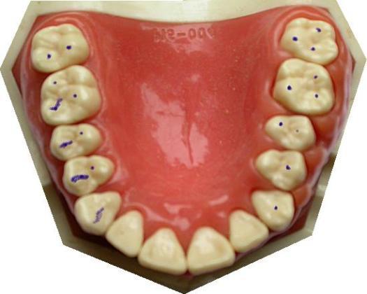 Teeth touching is kinda important.