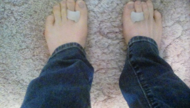 My feet with Active 365 toe separators inserted.