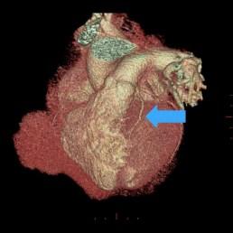 Strzałką zaznaczono drożną lewą tętnicę wieńcową
