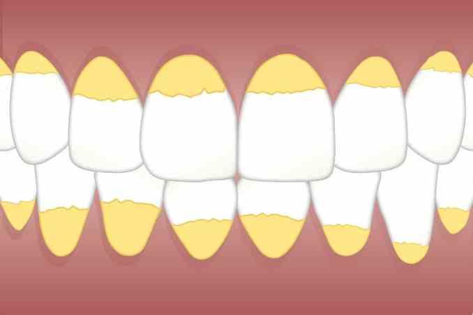 Zahnstein wegradieren