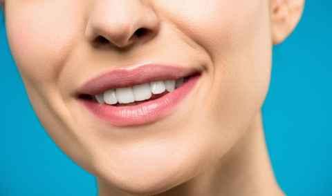 Zahnaufhellung mit Smile Secret