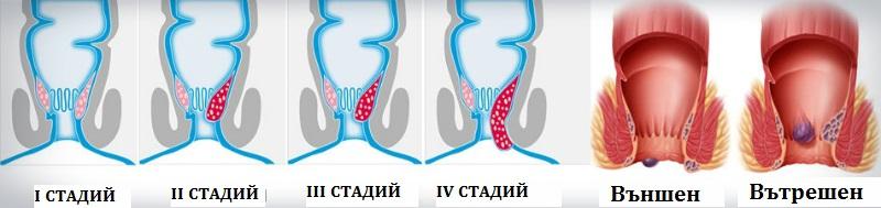Хемороиди домашно лечение