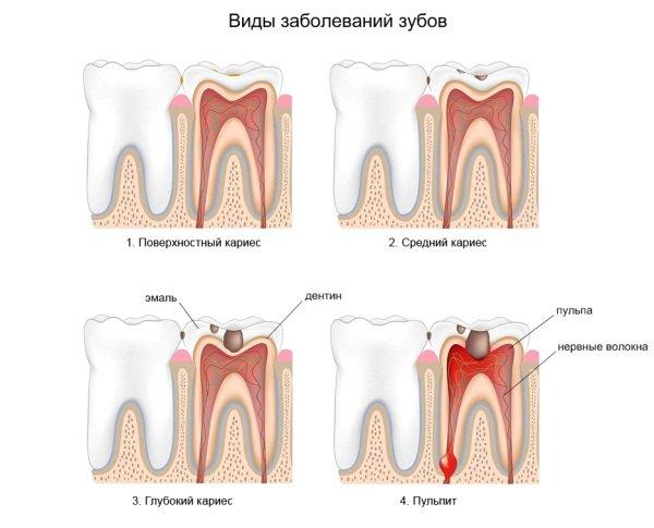Готовимся к родам можно ли лечить зубы во время беременности