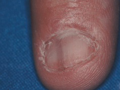 Nail Changes when infected by HIV