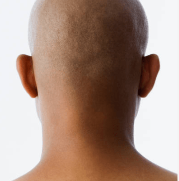Why Bald Men Are Beast In Bed
