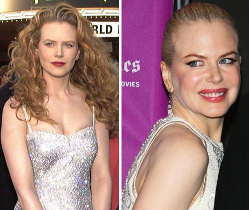 Nicole Kidman 100907 03 Copia