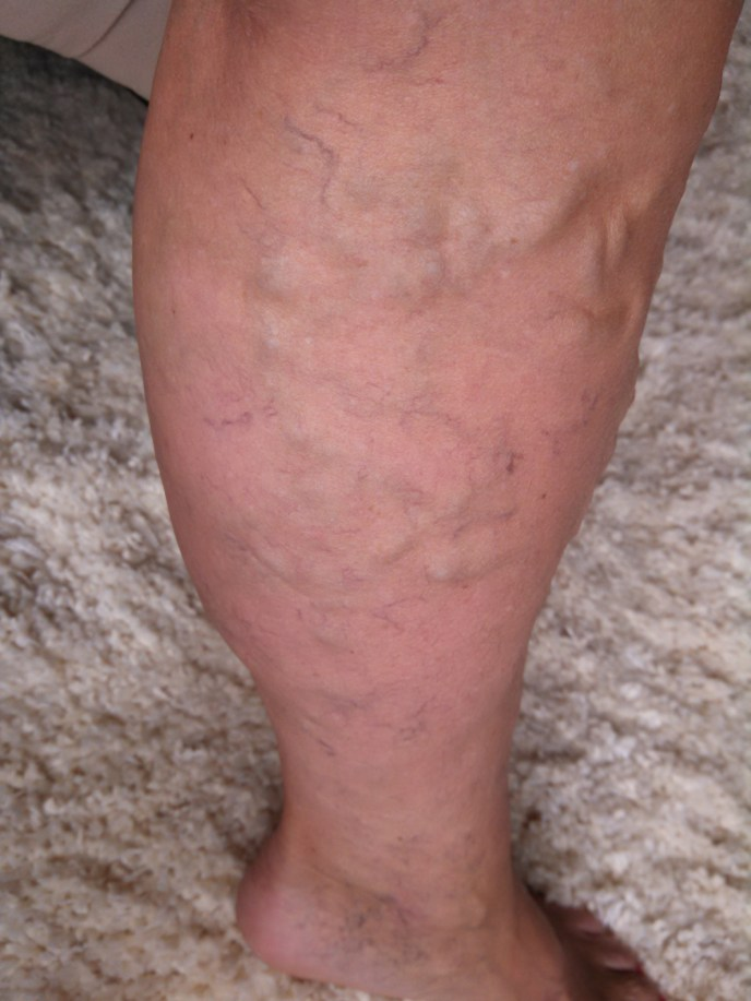 Soothing Relief for Varicose Veins
