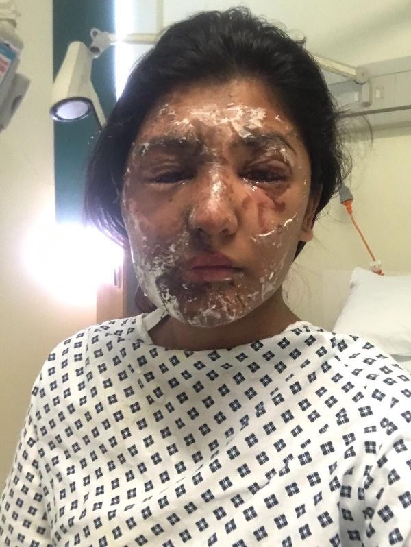 Resham Khan Acid Attack Victim