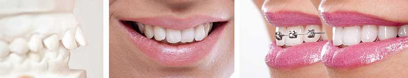 tri-kita-sovremennoj-stomatologii_03