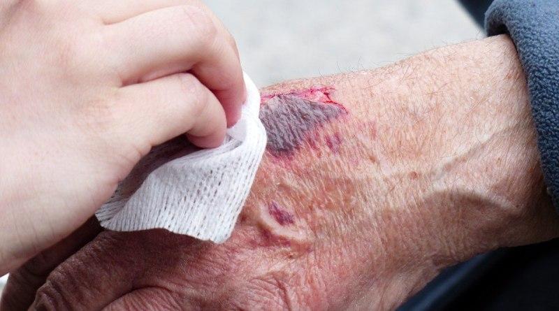 наранявания на работното място