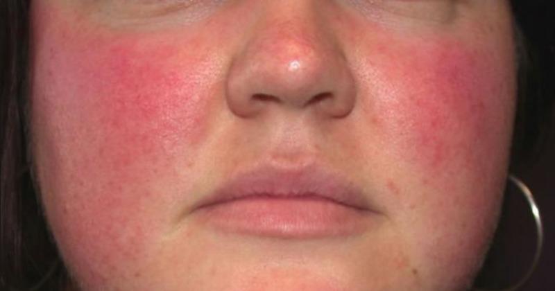Kaip atsikratyti venų ant veido - Hipertenzija November