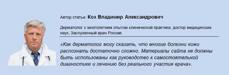 varicoză de pelvis mic în timpul sarcinii)