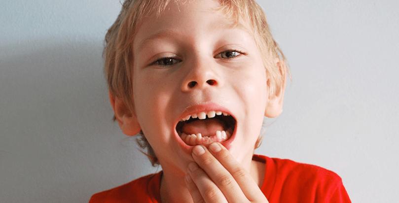 diskoloracija zuba